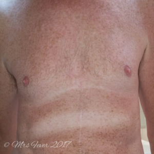man's tan chest with white stripes